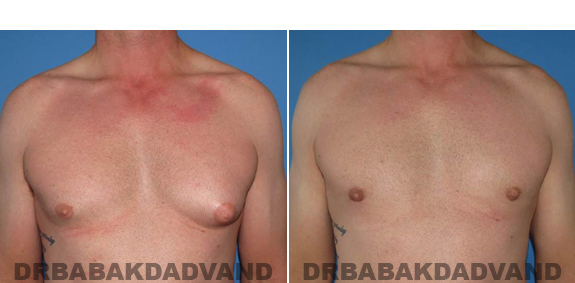 Gynecomastia. Before and After Treatment Photos  - male - front view (patient 46)