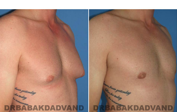 Gynecomastia. Before and After Treatment Photos  - male - right side oblique view (patient 46)