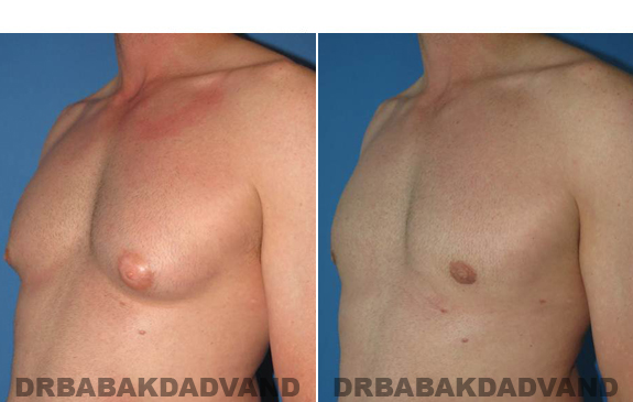 Gynecomastia. Before and After Treatment Photos  - male - left side oblique view (patient 46)