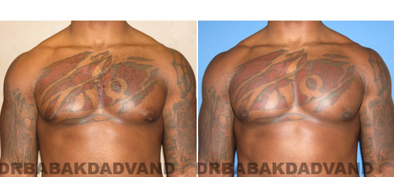 Gynecomastia. Before and After Treatment Photos  - male - front view (patient 47)