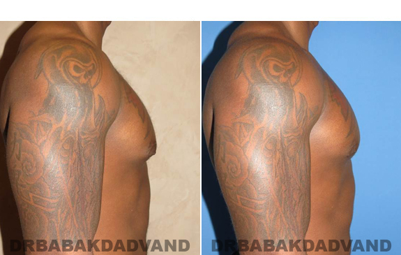 Gynecomastia. Before and After Treatment Photos  - male - right side view (patient 47)