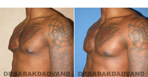 Gynecomastia. Before and After Treatment Photos  - male - left side oblique view (patient 47)