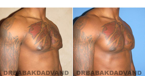 Gynecomastia. Before and After Treatment Photos  - male - right side oblique view (patient 47)