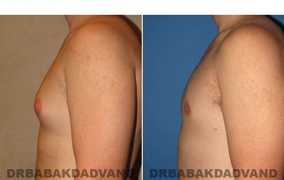 Gynecomastia. Before and After Treatment Photos  - male - left side view (patient 48)