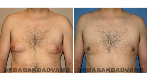 Gynecomastia. Before and After Treatment Photos - male - front view (patient - 50)