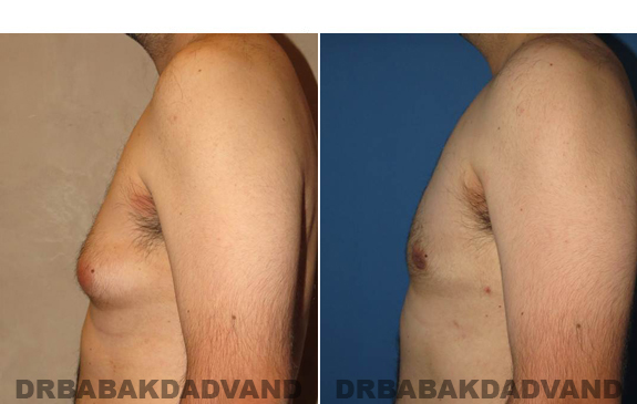 Gynecomastia. Before and After Treatment Photos - male - left side view (patient - 50)