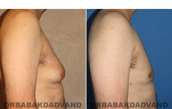 Gynecomastia. Before and After Treatment Photos - male - right side view (patient - 50)