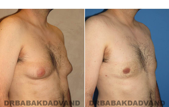Gynecomastia. Before and After Treatment Photos - male - right side oblique view (patient - 50)