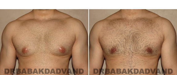 Gynecomastia. Before and After Treatment Photos - male - front view (patient - 51)