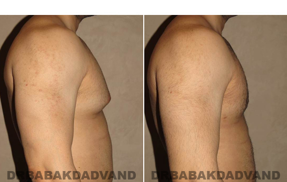 Gynecomastia. Before and After Treatment Photos - male - right side view (patient - 51)