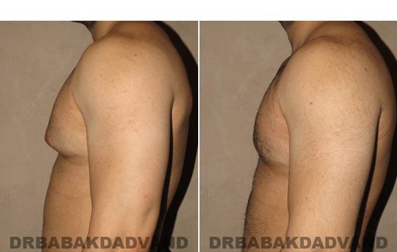Gynecomastia. Before and After Treatment Photos - male - left side view (patient - 51)