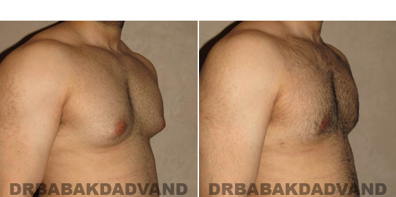 Gynecomastia. Before and After Treatment Photos - male - right side oblique view (patient - 51)
