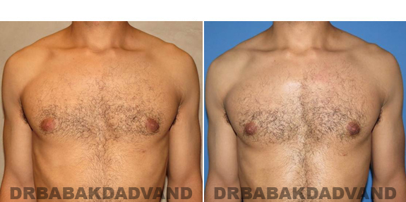 Gynecomastia. Before and After Treatment Photos - male - front view (patient - 52)