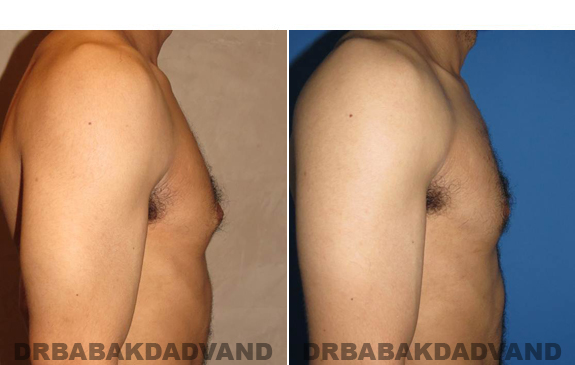 Gynecomastia. Before and After Treatment Photos - male - right side view (patient - 52)