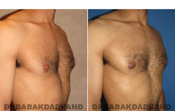 Gynecomastia. Before and After Treatment Photos - male - right side oblique view (patient - 52)