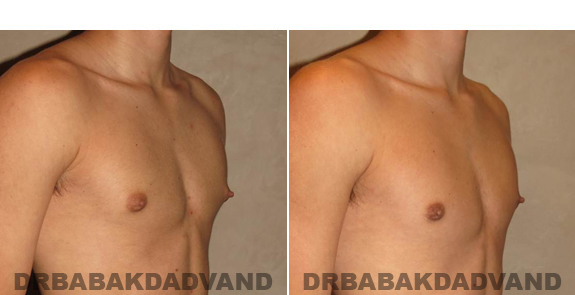 Gynecomastia. Before and After Treatment Photos - male - right side oblique view (patient - 53)