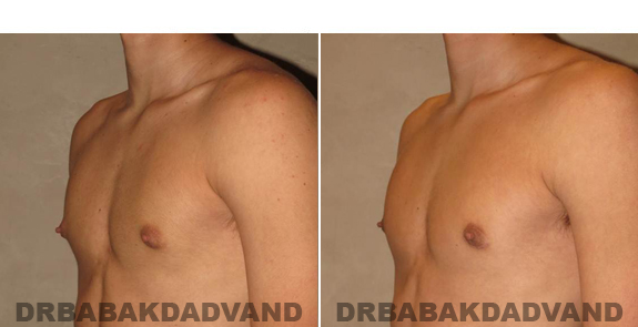 Gynecomastia. Before and After Treatment Photos - male - left side view (patient - 53)