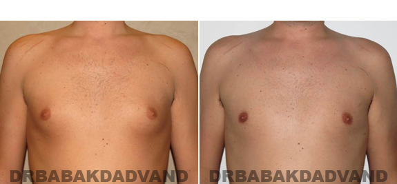 Gynecomastia. Before and After Treatment Photos - male - front view (patient - 54)