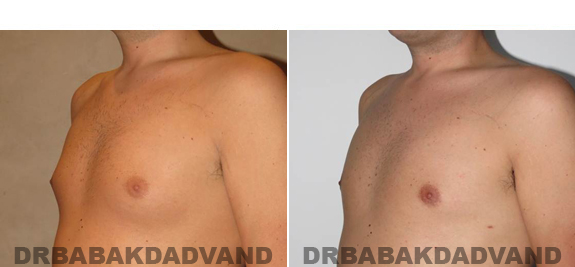 Gynecomastia. Before and After Treatment Photos - male - left side oblique view (patient 54)