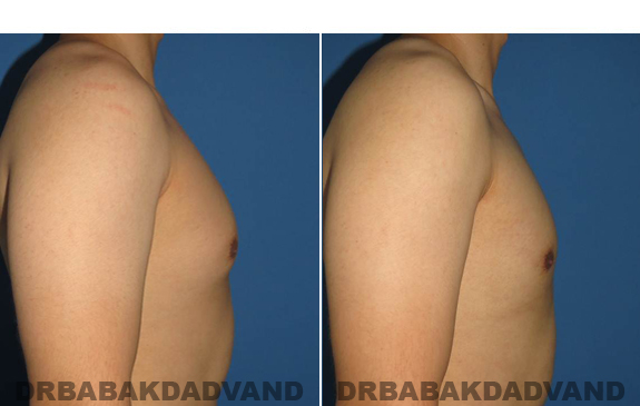 Gynecomastia. Before and After Treatment Photos - male - right side view (patient - 55)