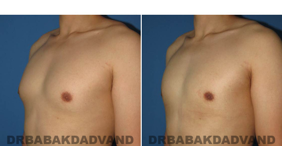 Gynecomastia. Before and After Treatment Photos - male - left side oblique view (patient 55)