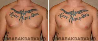 Before and After Treatment Photos: 24 year old Male, puffy nippels