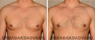 Before and After Treatment Photos: 32 year old Male