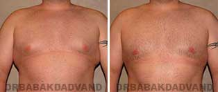 Before and After Treatment Photos: 28 year old patient