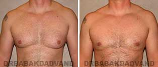 Before and After Treatment Photos: 39 year old patient