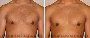 Before and After Treatment Photos: 23 year old patient