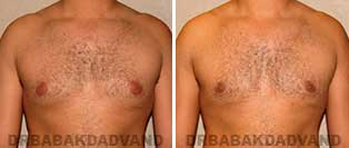 Before and After Treatment Photos: 28 year old patient, gynecomastia surgery