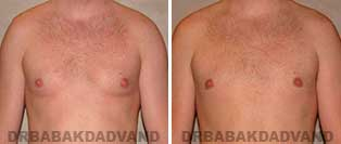 Before and After Treatment Photos: 28 year old male, gynecomastia surgery