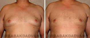 Before and After Treatment Photos: 35 year old male, gynecomastia surgery
