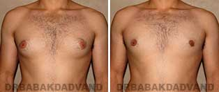 Before and After Treatment Photos: 22 year old male, gynecomastia surgery