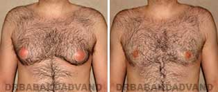 Before and After Treatment Photos: gynecomastia surgery - 28 year old male