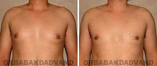 Before and After Treatment Photos: gynecomastia surgery - 27 year old patient