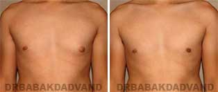 Before and After Treatment Photos: 24 year old Male