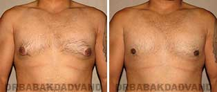Before and After Treatment Photos: gynecomastia surgery - 28 year old patient