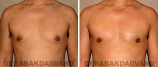 Before and After Treatment Photos: gynecomastia surgery-36 year old patient