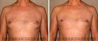 Before and After Treatment Photos: gynecomastia surgery-40 year old patient