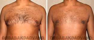 Before and After Treatment Photos: gynecomastia surgery- 33 year old patient