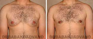 Before and After Treatment Photos: gynecomastia surgery- 26 year old patient