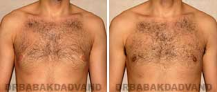 Before and After Treatment Photos: 24 year old Male, left sided gynecomastia