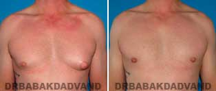 Before and After Treatment Photos: gynecomastia surgery - 35 year old patient