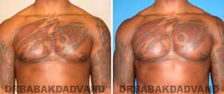 Before and After Treatment Photos: Gynecomastia Surgery: 27 year old patient