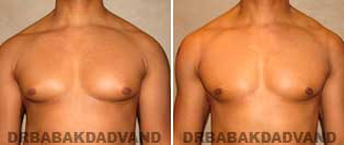 Before and After Treatment Photos: Gynecomastia Surgery: 50 year old, patient