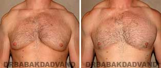 Before and After Treatment Photos: 39 year old Male