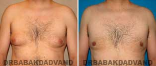 Before and After Treatment Photos: Gynecomastia Surgery: 34 year old, patient