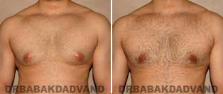 Before and After Treatment Photos: Gynecomastia Surgery: 28 year old, patient