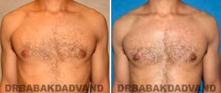 Before and After Treatment Photos.Gynecomastia Surgery - 27 year old, patient